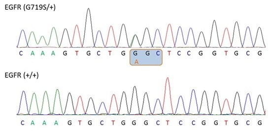 Chromatograph showing heterozygosity for the EGFR G719S mutation within EGFR (SNP accession number: rs28929495)