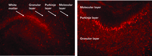 organotypic brain slices