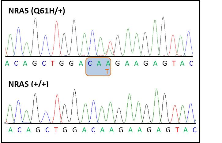 Chromatograph showing heterozygosity for the N-Ras Q61H mutation within N-Ras